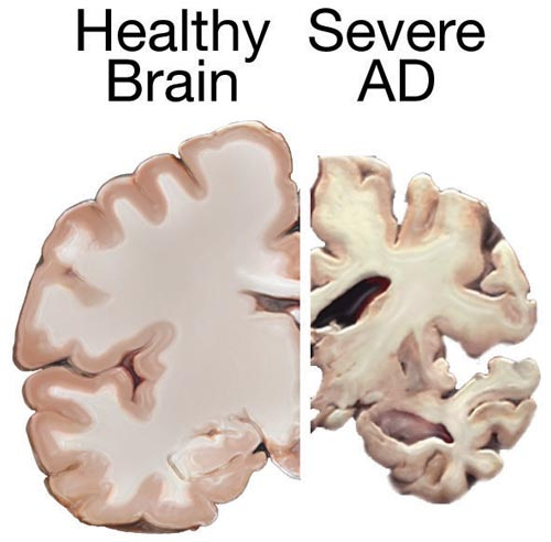MEND Protocol For Alzheimer's Disease