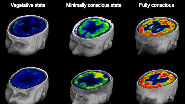PET Scans Predict Coma Outcome