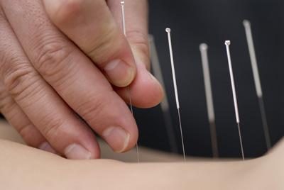 Acupuncture and Endorphins: Not all that Impressive